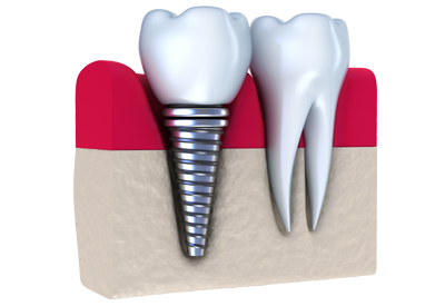 PDM_Dental-Implant-Example